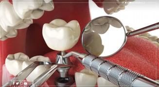 زراعة الأسنان في تركيا: إقبال متزايد وأسعار تشجيعيّة