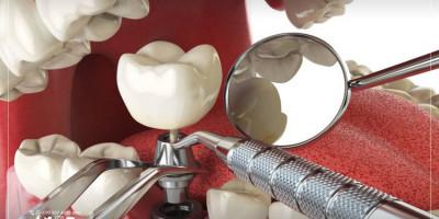 زراعة الأسنان في تركيا تشهد إقبال متزايد وأسعار تشجيعيّة وخبرات طبية رائدة