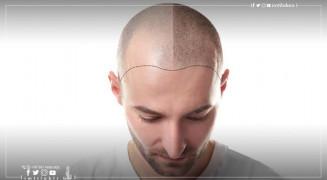 Greffe des cheveux en Turquie